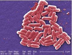 Micrografía electrónica de una Escherichia coli (© Janice Harvey Carr, Center for Disease Control)